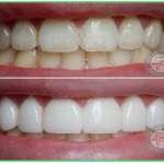 Керамические зубы: срок службы и факторы, которые на него влияют